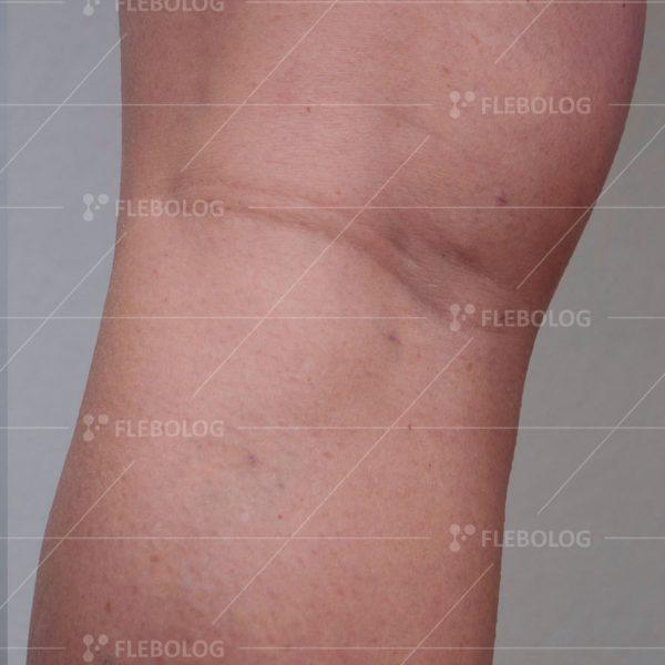 После лечения у флеболога