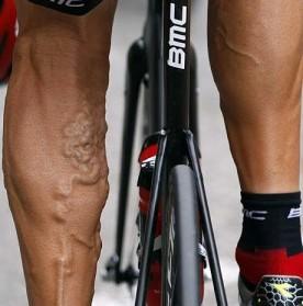 velosiped-pri-varikoze