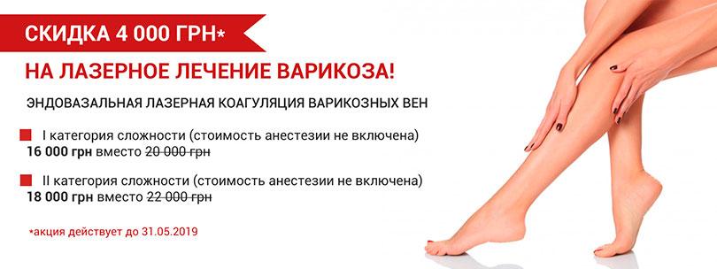Akciya_lechenie_varikoza_lazerom